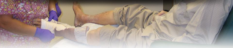 The Center for Wound Care and Hyperbaric Medicine - Patient Education